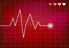 心脏监测向量。心电图。