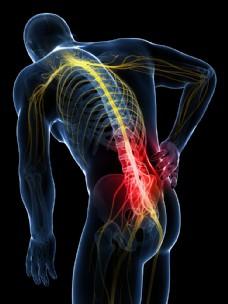 人体腰椎疼痛图片